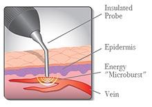 VeinGogh Procedure Top Varicose Vein Doctor NYC p01