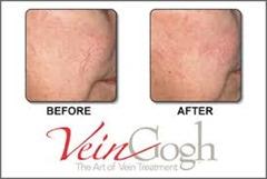 VeinGogh Procedure Top Varicose Vein Doctor NYC p02