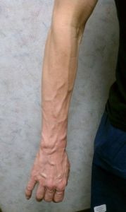 spider veins on arms