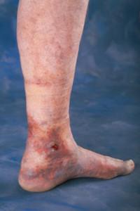 can varicose veins burst