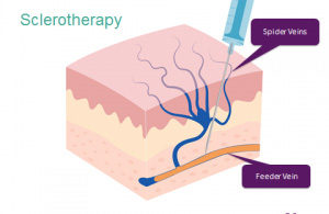 What is Sclerotherapy? | Top Varicose Vein Treatment NYC