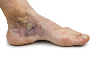 What Diseases Can Cause Varicose Veins?