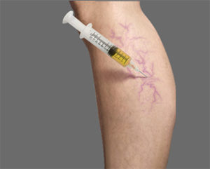 What Are the Side Effects of Sclerotherapy?