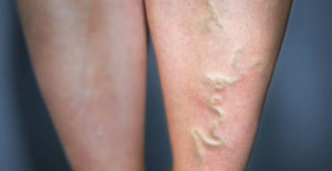 Are Varicose Veins Dangerous?