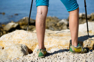 Can Stress Cause Varicose Veins?